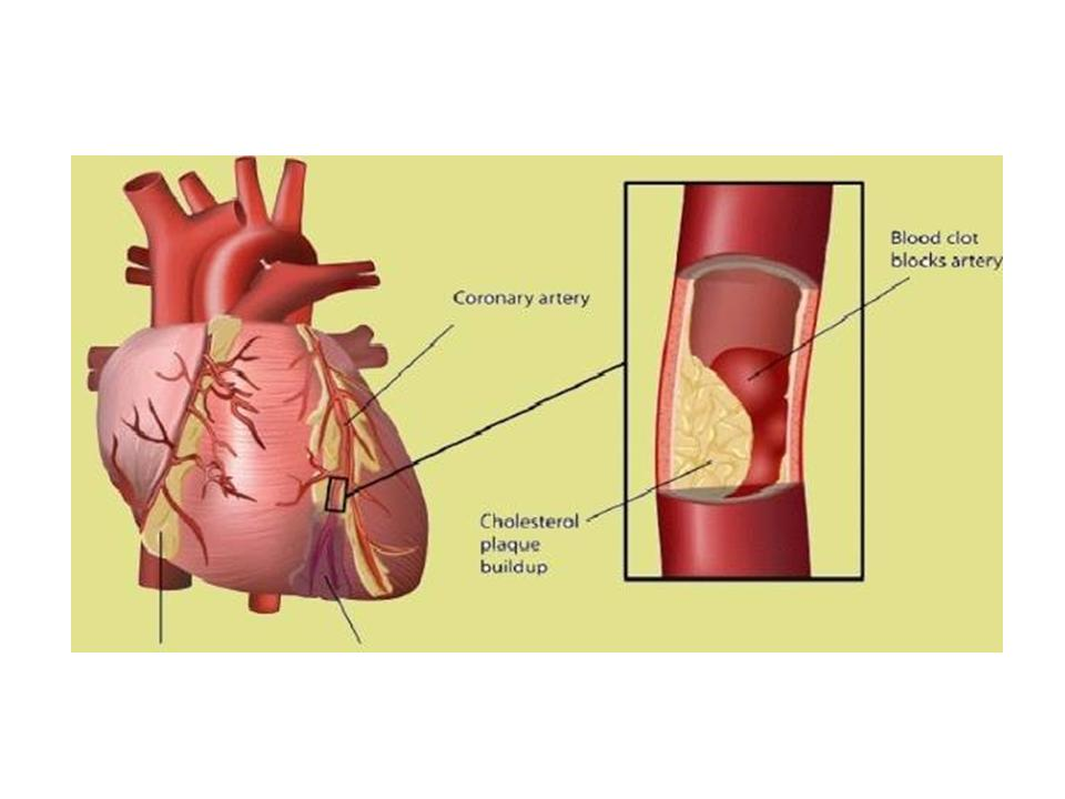 Blood Clots can affect blood circulation