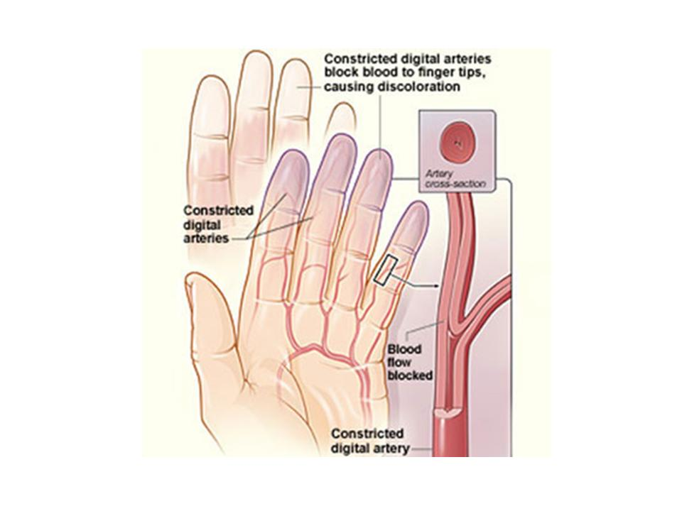 Poor circulation can be due to blood clots