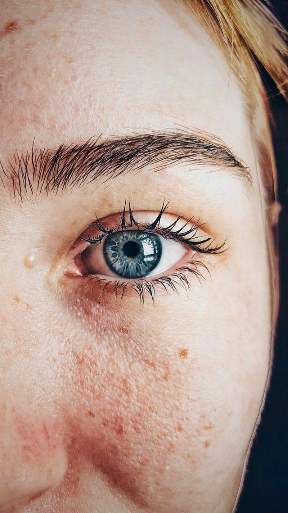 6 ways to prevent skin cancer