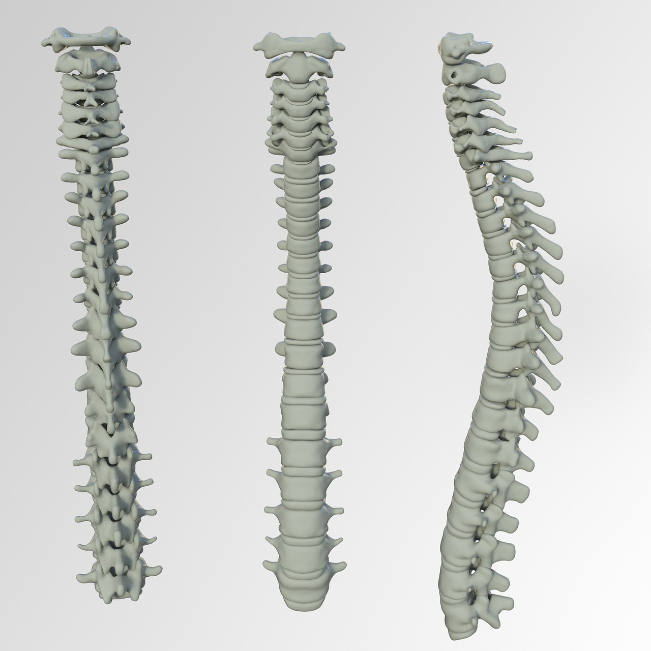image showing how Osteoporosis causes curvature of the spine