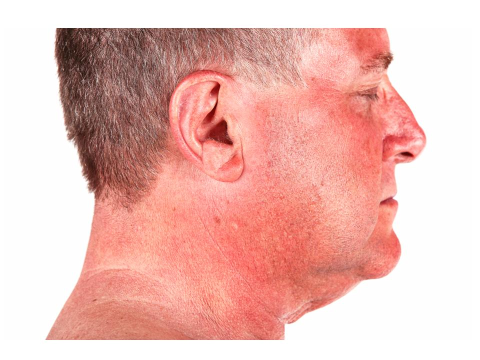 sun damage in middle aged man