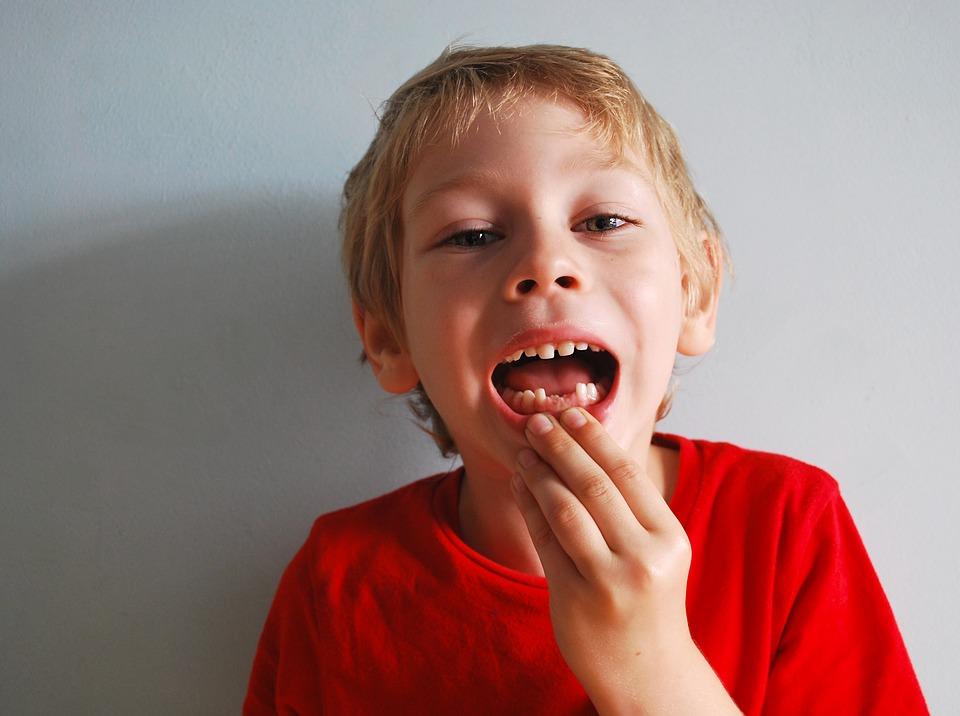 boy showing lost teeth
